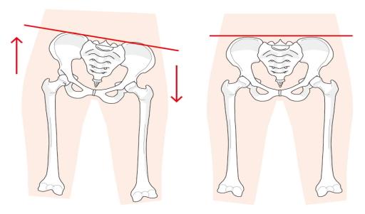 不妊症の原因は骨盤のゆがみ?オステオパシーから見た見解とは